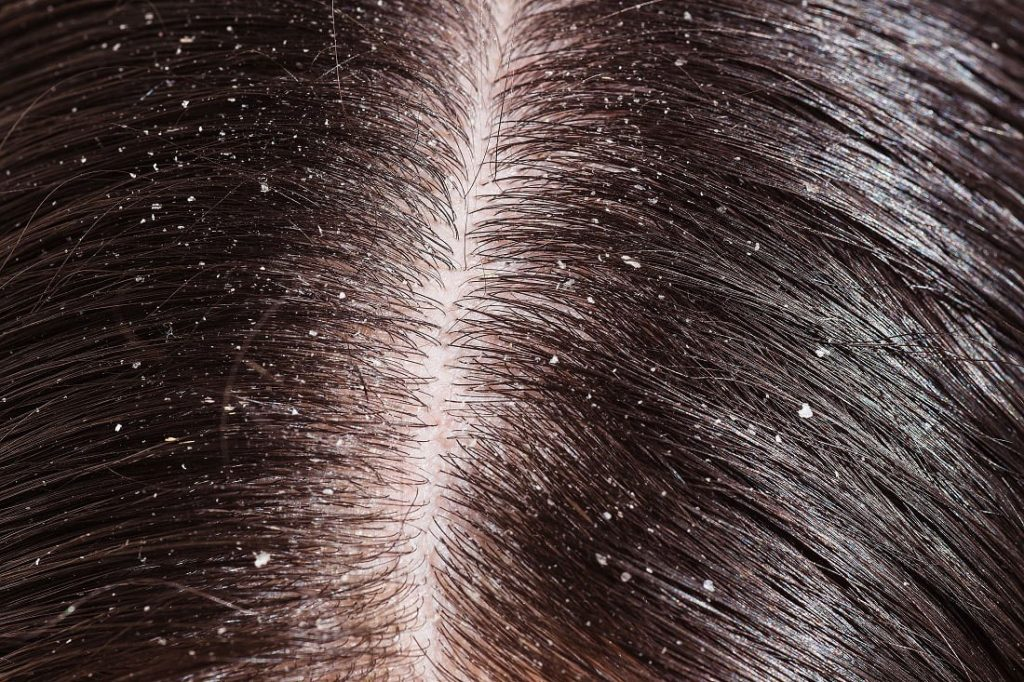 types-of-dandruff